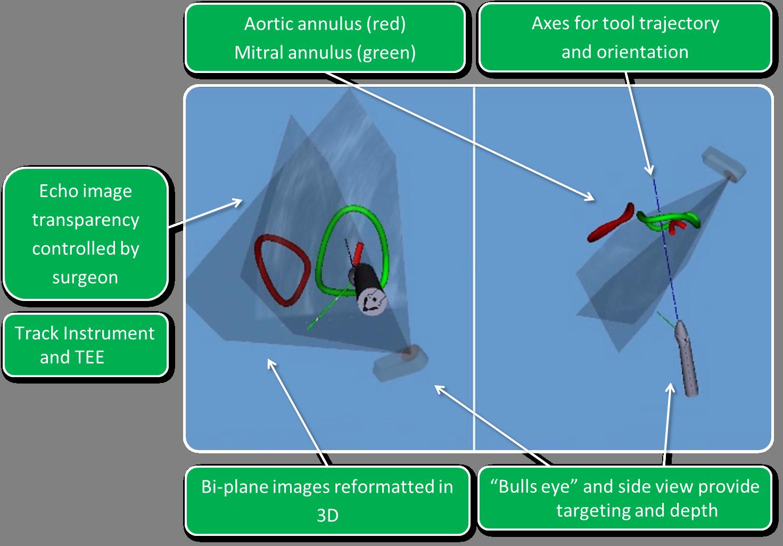 Ismar 2014: Die Rolle von AR in der Medizin